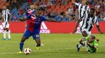 FC Bâle : Aldo Kalulu victime d'un nouvel incident raciste